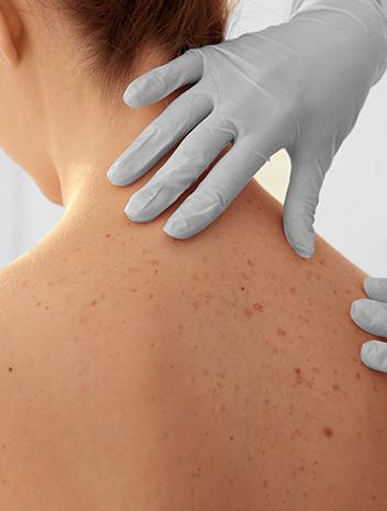 Oz Skin Cancer Clinic Pakenham - Skin Cancer Checks Bulk Billed
